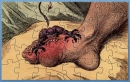 Gout Foot Demon Puzzle