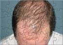 Bald Man Puzzel